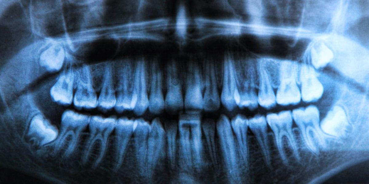 xray showing impacted wisdom teeth